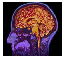Brain scan, cropped with border